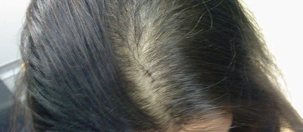 روشهایی برای داشتن موهایی پرپشتتر و سالمتر