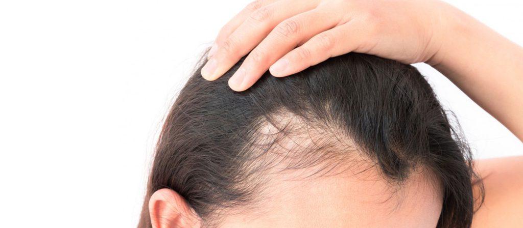 رشد مو با میکرونیدلینگ