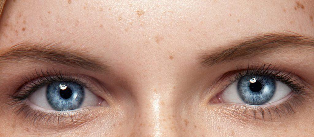لکهای پوستی