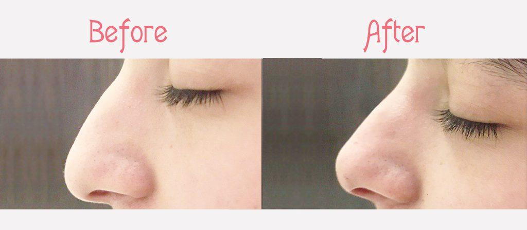 نمونه لیفت بینی