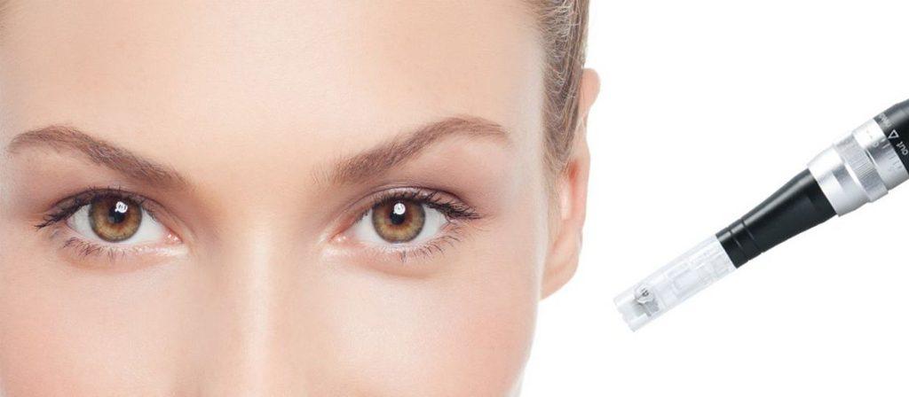 تأثیرات میکرونیدلینگ بر پوست