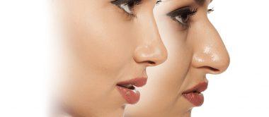 اصلاح بینی چندین سال پس از جراحی