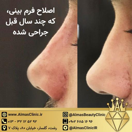 اصلاح بینی پس از جراحی